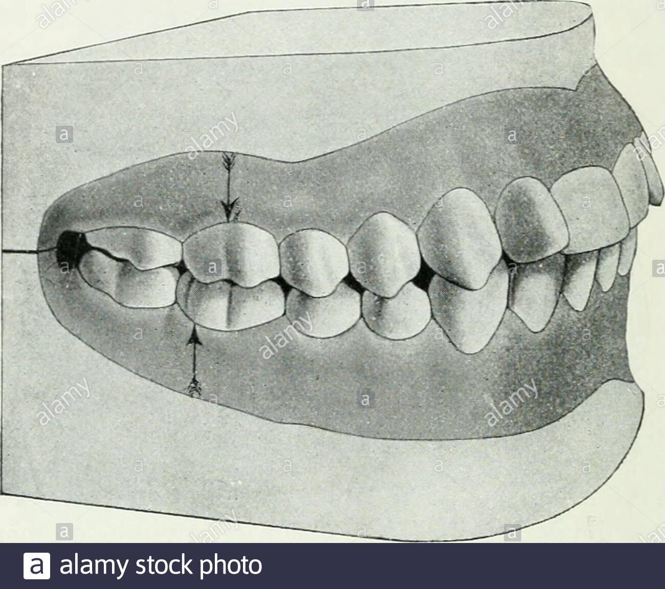 lehrbuch der orthodontie fur stu rende und zahnartze mit enschluss der geschichte der orthodontie fig 21t miges verfahren ist in fig 211 abgebildet nach dem dehnungund vorzwingen der vorderzhne gleichzeitig vorgenommen werdenknnen verschiebung sollte man nicht beginnen bevor man a i fig 212 fig 213 unteren schneidezhne an gleichnamigen oberen heran gebracht hat damit nicht whrend der biverschiebung oberenschneidezhne wieder in ihre alte stellung zurckmarschieren 224 ii therapie der anomalien knnen bei der biverschiebung verwende ich bis zu drei un 2AFT0CD